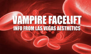 What is a Vampire FaceLift treatment anyway?