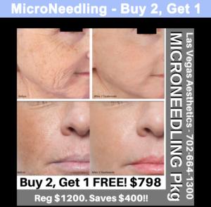MicroNeedling Buy 2 Get 1