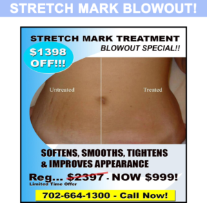 Strech Mark Blowout