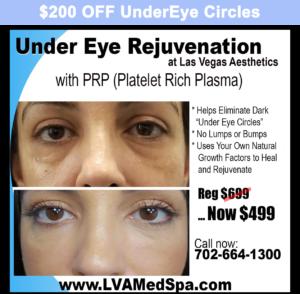 $200 off Under Eye Circles
