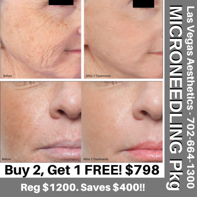 MICRONEEDLING-TREATMENT-PKG