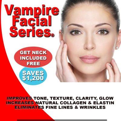 Vampire-Facial-WEB-SPECIAL-
